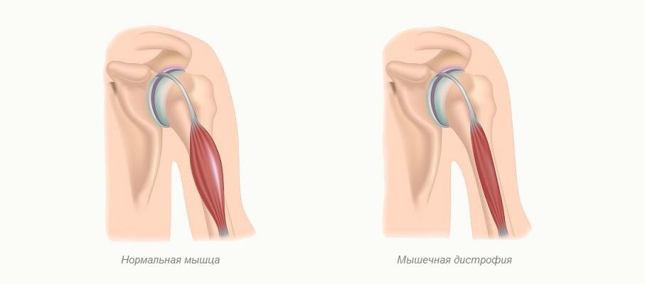 Нивалин при лечении прогрессивной мышечной дистрофии