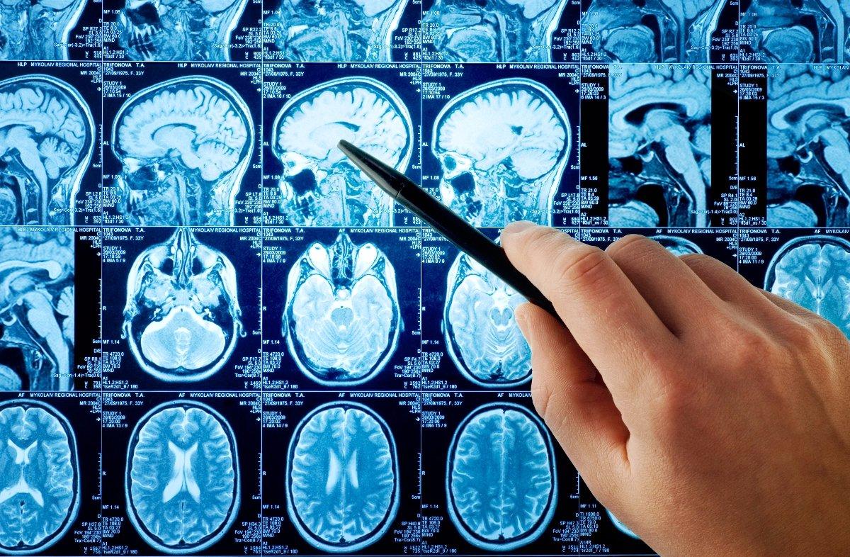 Нивалин - области применения в неврологической практике