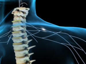 эффект от лечения Нивалином последствий поражения двигательных нейронов спинного мозга вирусом полиомиелита