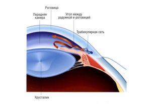 закрытоугольной глаукомы